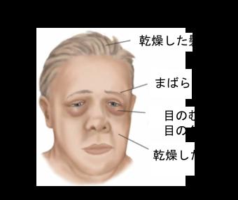 甲状腺機能低下症の症状②(外見...